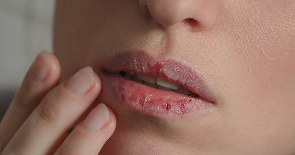 Close up of chapped lips